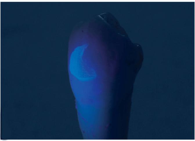 歯面に残存したボンディング材もUV照射により簡単に識別可能