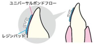 拡がりやすい、ペースト性状によりベース面と歯面にフィット02
