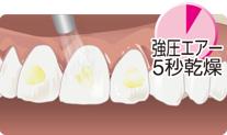 シンプルですばやい歯面処理02