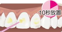 シンプルですばやい歯面処理01