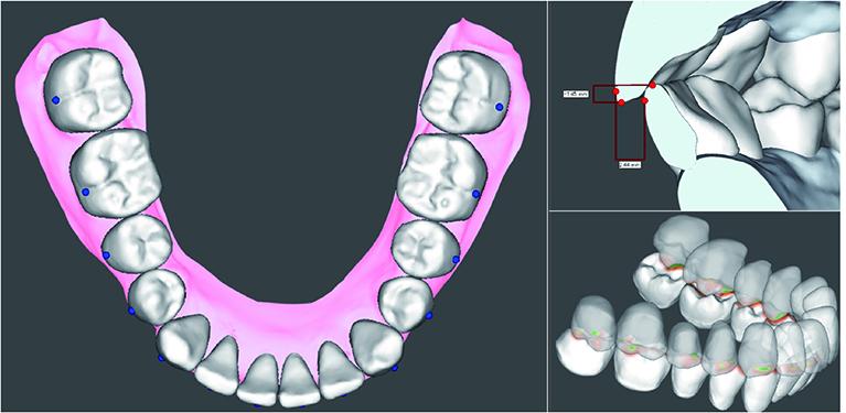 OrthoDesign/歯列設計ソフトウェア