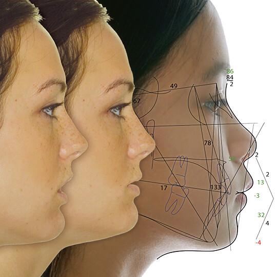 矯正・外科処置用:側貌セファロ分析