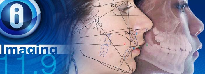 歯科・外科矯正ともに対応する治療シミュレーション