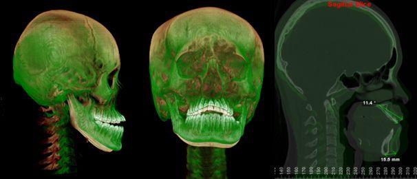 CTの重ね合わせ
