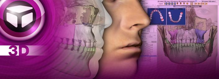 CT、模型データ、顔写真で始める外科シミュレーション