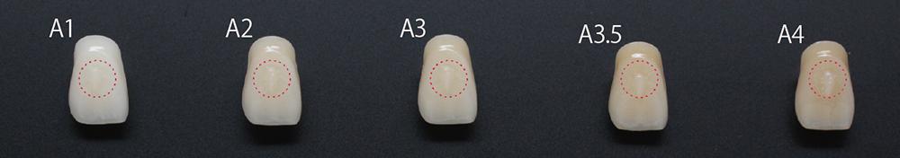 広い天然歯の色調をカバーするユニバーサル色
